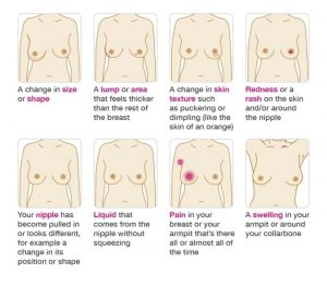 The first step – Breast Self-Examination (BSE)
